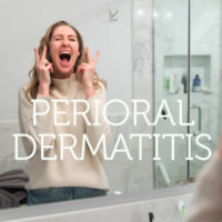 How to Heal Perioral Dermatitis Naturally